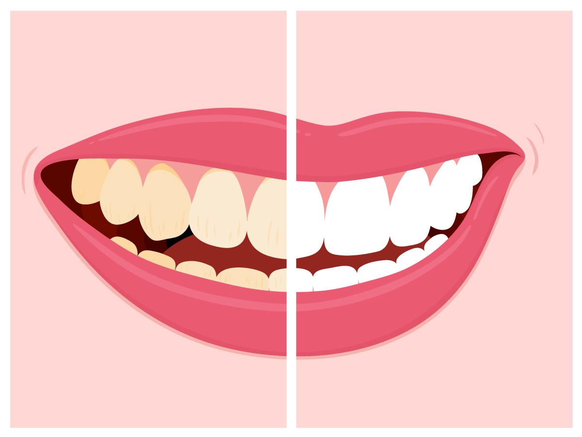 Stained Teeth - Freeport Dental